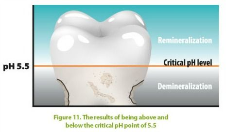 tooth enamel demineralization increases when mouth ph is below 5.5