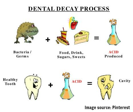 Healthy tooth plus acid can cause a cavity