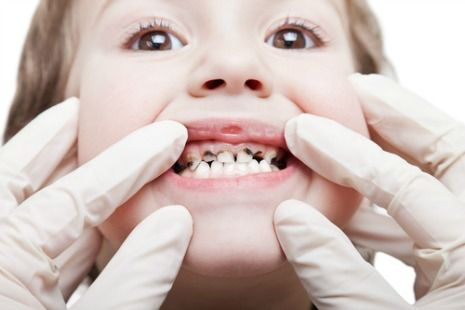 Picture of child with cavity