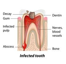 Diagram of tooth with a cavity
