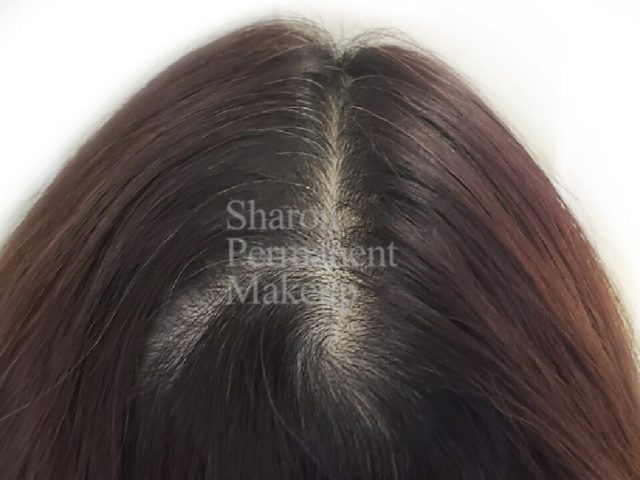 1-Crown-Hairpart-HS-before