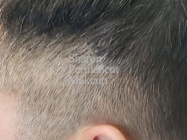1-alopecia-after-man-spot-baldness-sameday