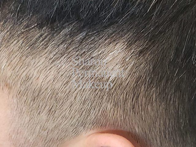 1-alopecia-before-man-spot-baldness