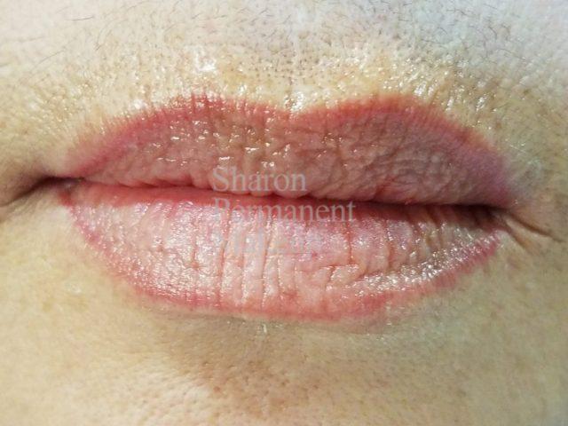 1-full-lip-before