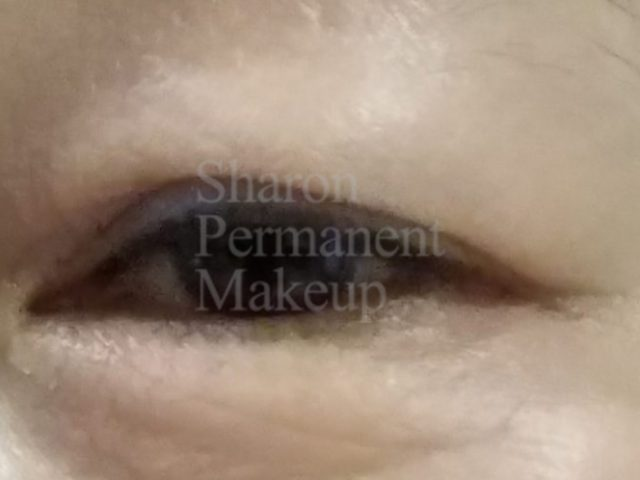 2-eyeline-before
