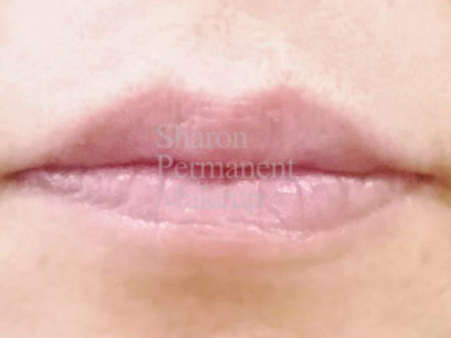 2-full-lip-before