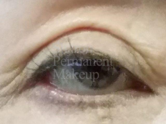 3-eyeline-before