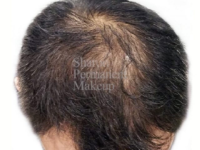 3-full-HS-frontal-to-paretal-before