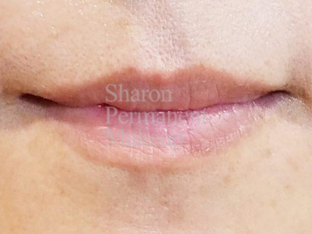 3-full-lip-before
