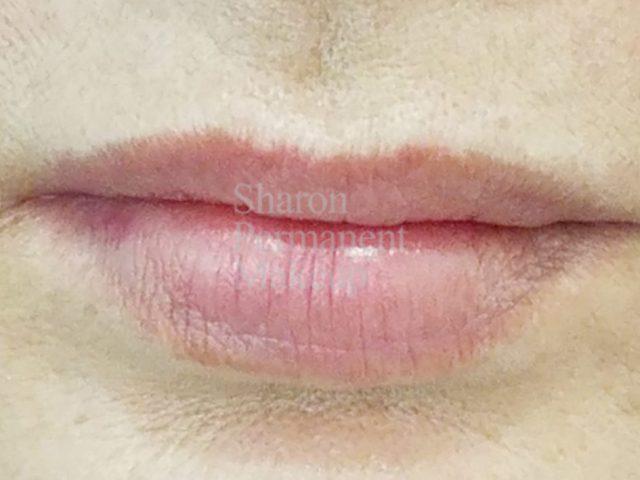 4-full-lip-before
