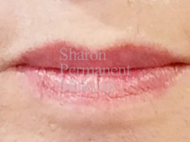 5-full-lip-before