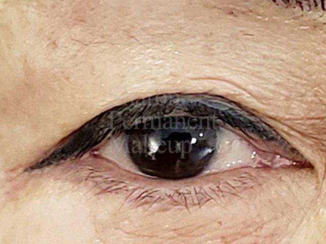 6-eyeline-after-top-sameday