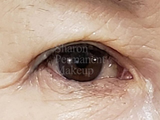 7-eyeline-before