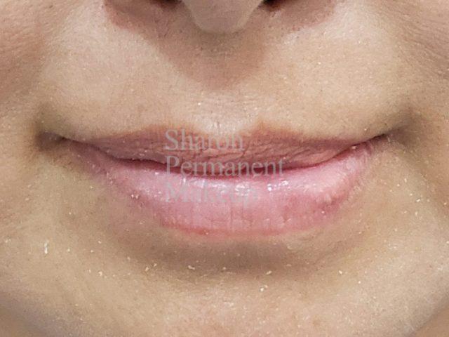7-full-lip-correction-before