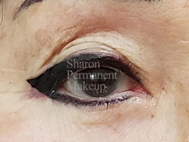 2-eyeline-correction-top-bottom-after-(sameday)-1