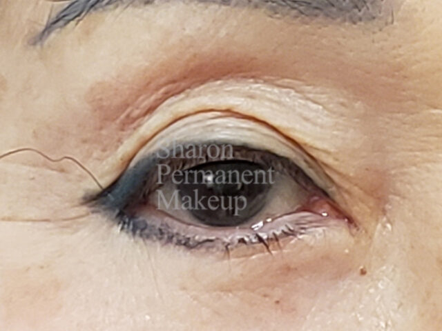 2-eyeline-correction-top-bottom-before-1