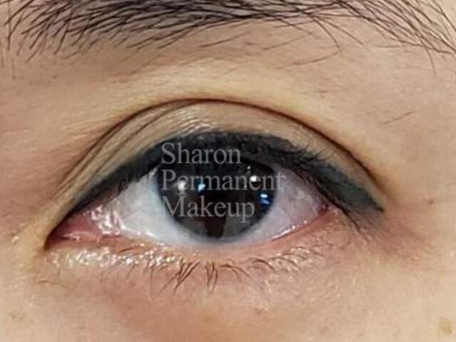 10-eyeline-after-(2-months)