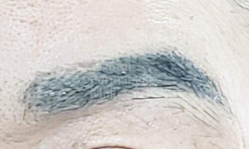 17-eyebrow-man-before