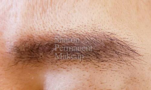 18-eyebrow-man-after-(3-months)