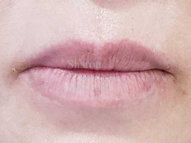 8-Full-lip-before