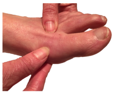 Podiatrists at Northern Foot Clinic frequently treat people with bunions / big toe joint pain