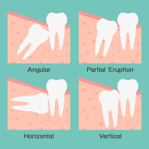 bigstock-Wisdom-Tooth-48093035-[Converted]