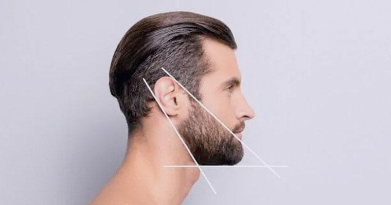 Laser Beard Shaping