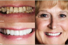Full Denture (before and after)