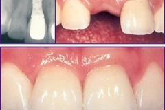 Implant (before and after