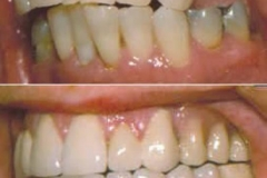 Partial Denture (before and after)