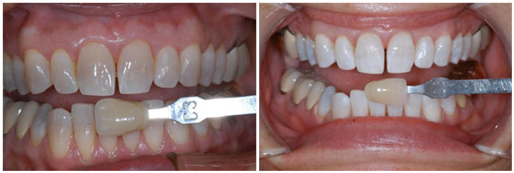 Before & After Professional Teeth Whitening | Bill Phelps DDS | Spencer Dentist