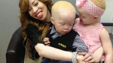 Photo of Refilwe Modiselle Working On Gifting Spectacles To Kids With Albinism