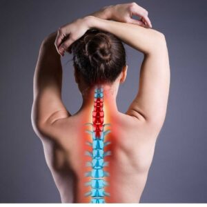 Photo of the back showing the different levels of the spine after an automobile accident.