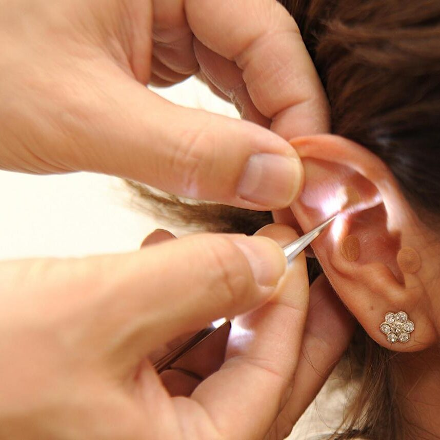 auricular_therapy