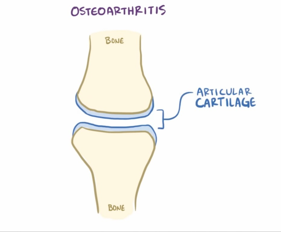 Osteoarthritis Articular cartilage