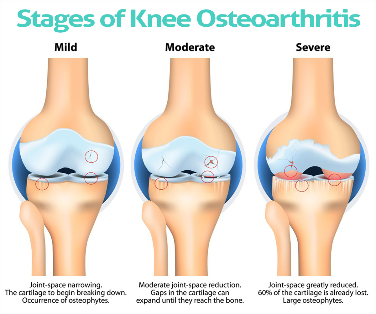 Stages of Osteoarthritis