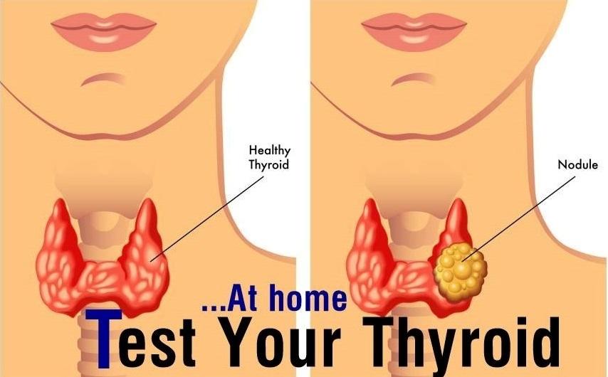 Test your thyroid