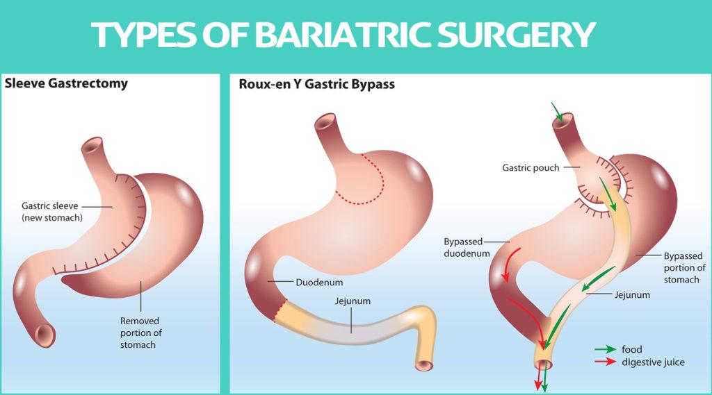 Sleeve Gatrectomy Vs Roux-en-y gastric bypass