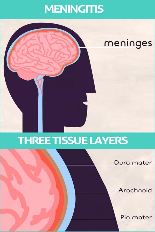 Types and treatment Meningitis