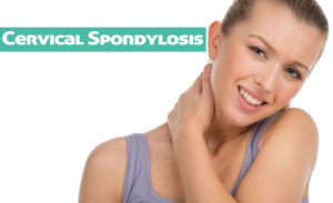 Cervical Spondylosis Symptoms, Management, and Treatment