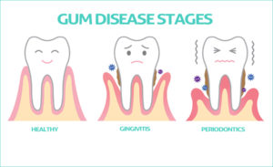 Top 10 Ways to Stop Bleeding Gums by Home Remedies