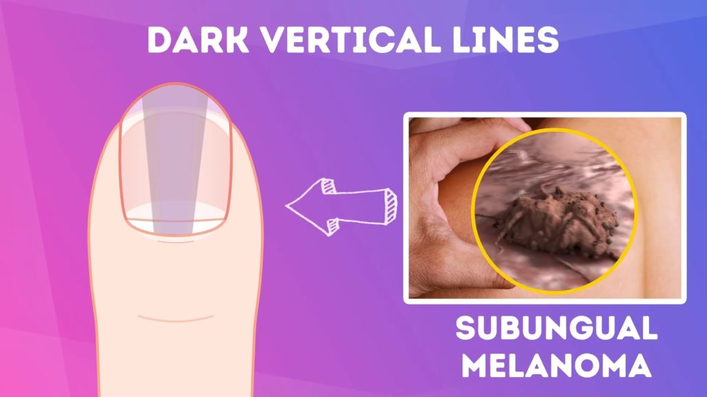 Dark verticle lines