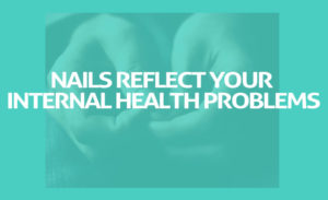 Fingernail Abnormalities Reflect Your Internal Health Problems