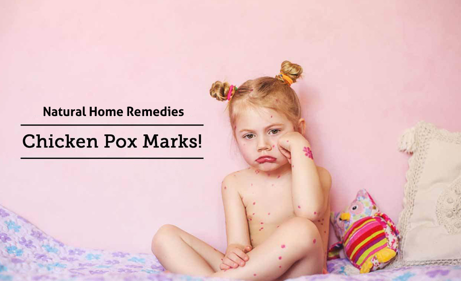 10 Natural Home Remedies For Chickenpox Marks