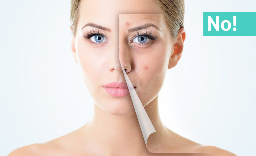 Acne treatment: Food, Tips & Home Remedies