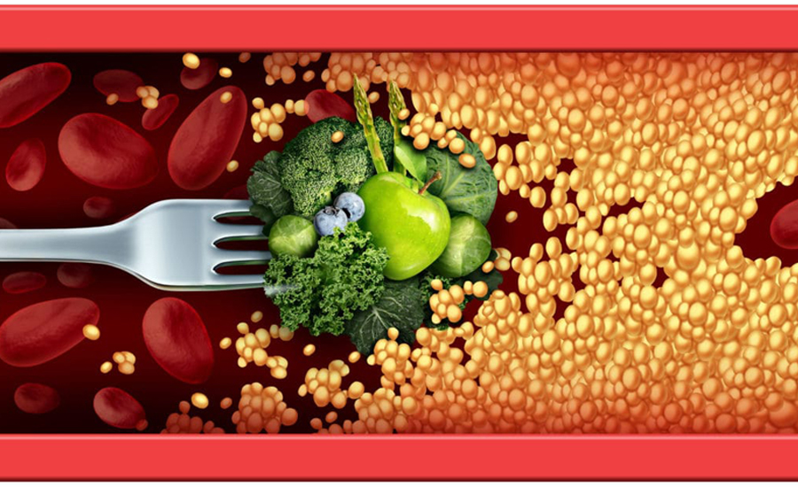 6 Important Lifestyle Changes to Improve Your Lipid Profile