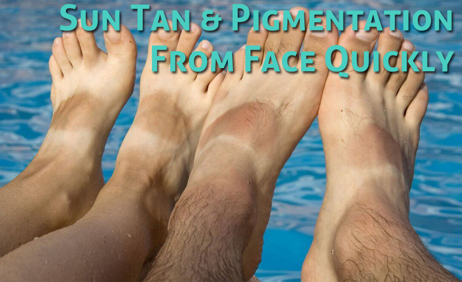 How to Remove Sun Tan & Pigmentation From Face Quickly