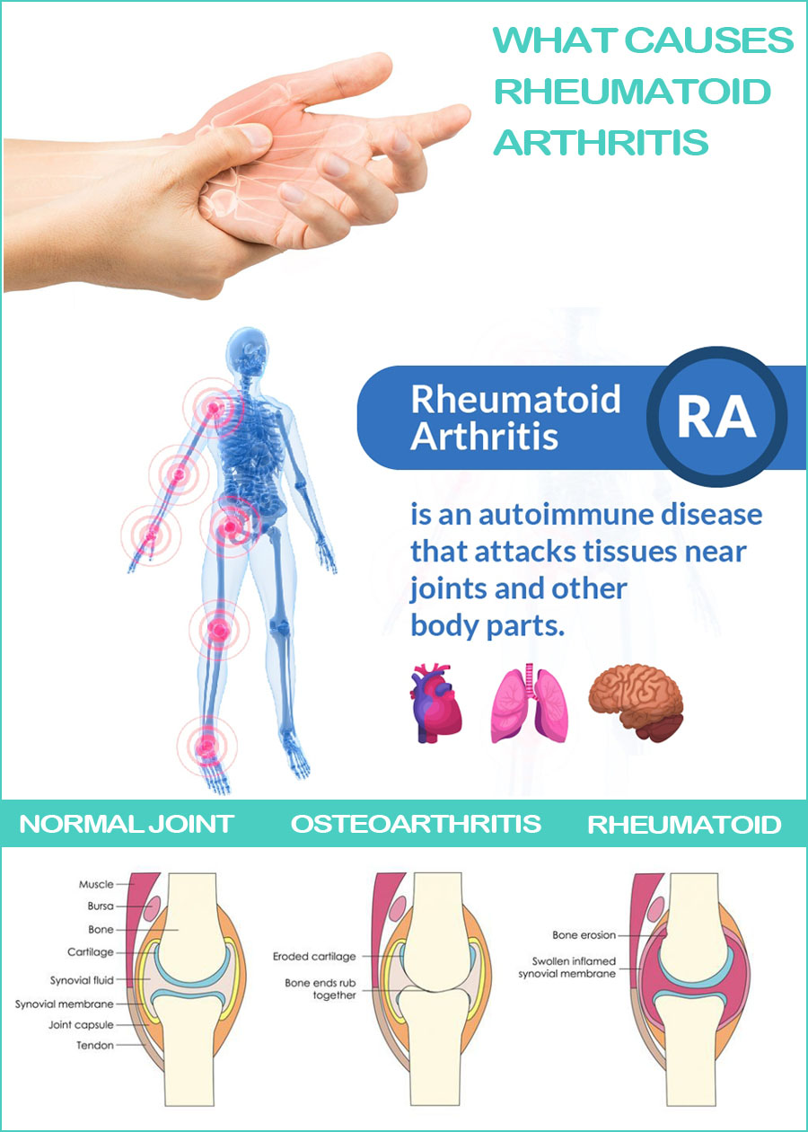 Common symptoms-Rheumatoid-Arthritis