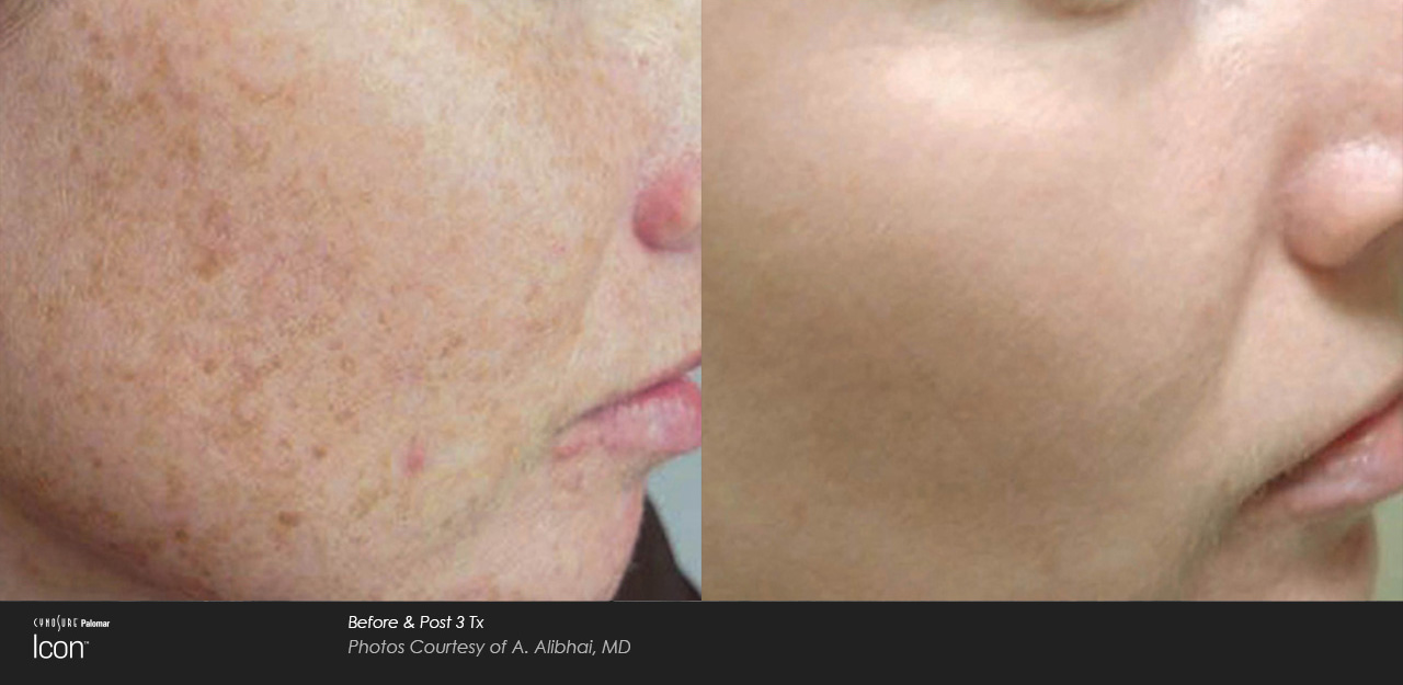 Sun damage and brown spots IPL before and after