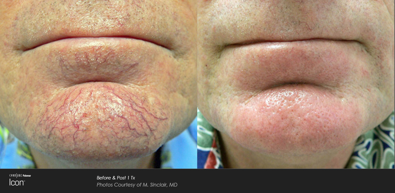 Vein Treatment IPL before and after